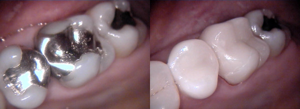 CEREC Ceramic Fillings Tooth Restoration - Before and After