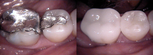 Subiaco Dental Practice - Amalgam Free Dental Restoration Cerec