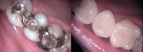 Subiaco Dental Practice - Amalgam Free Dental Restoration Cerex Filling