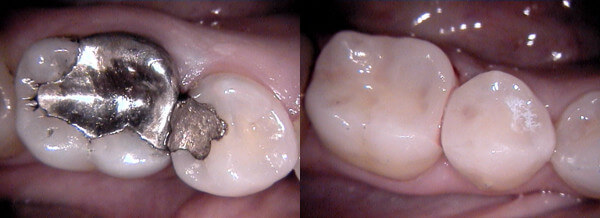 Subiaco Dental Practice - Before and After Cerec Ceramic Fillings