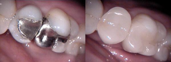 Subiaco Dental Practice -Cerec Filling Amalgam Free Restorations